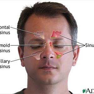 Cure Natural Remedy Sinusitis