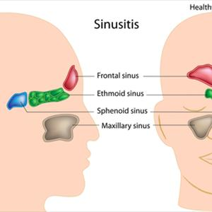 Drinking Water Unblocking Maxillary Sinuses