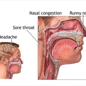 Sinus Causes Light Headed