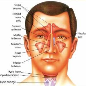 Cures For Sinusitis