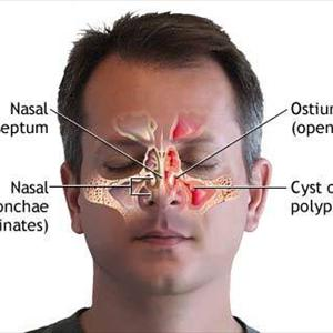Sinusitis Nose Spray - Methods Used To Avoid A Sinus Infection