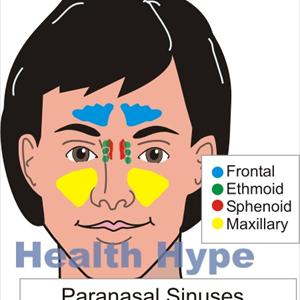 Sinuvil Herbals - Types Of Candica Sinusitis